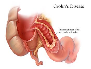 Dieta Para La Enfermedad De Crohn on appendicitis location diagram