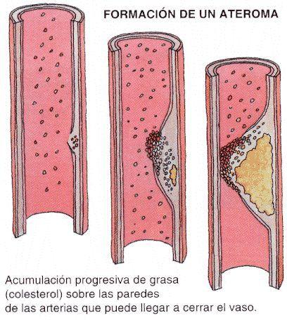 acumulacion colesterol ateroma