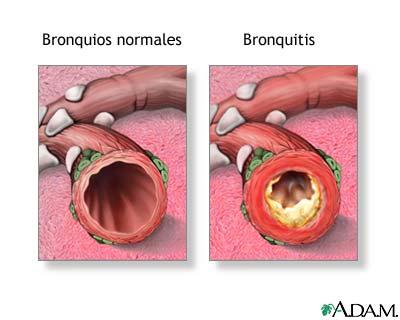 bronquios epoc