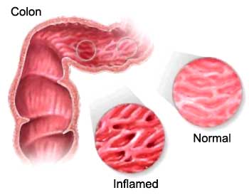 colon irritable sindrome del intestino irritable