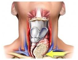 endocrino tiroides