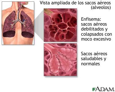 enfisema pulmonar epoc