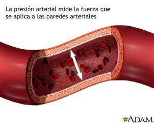 tipos hipertension