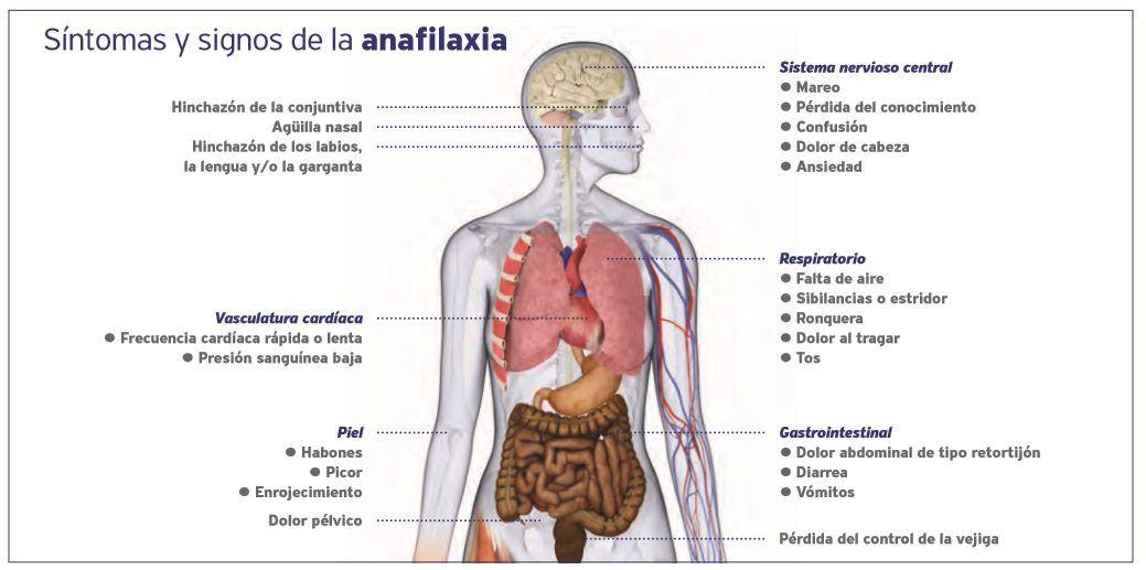 sintomas y signos de la anafilaxia ltp